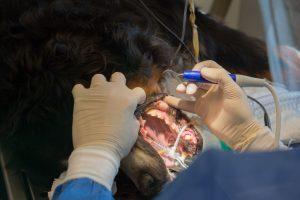 Imagen de limpieza dental por ultrasonidos